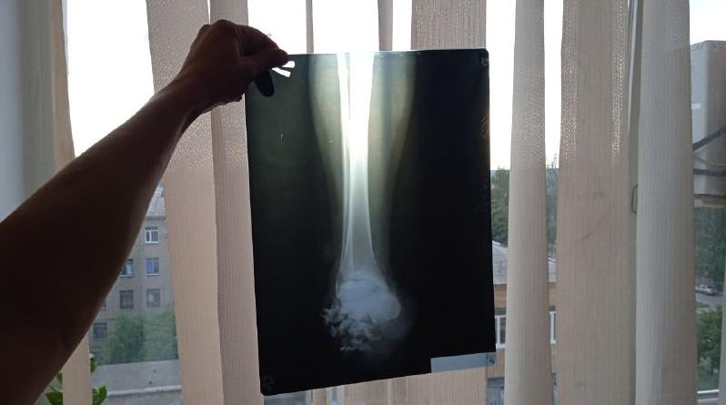 Жительница Горловки подорвалась на мине